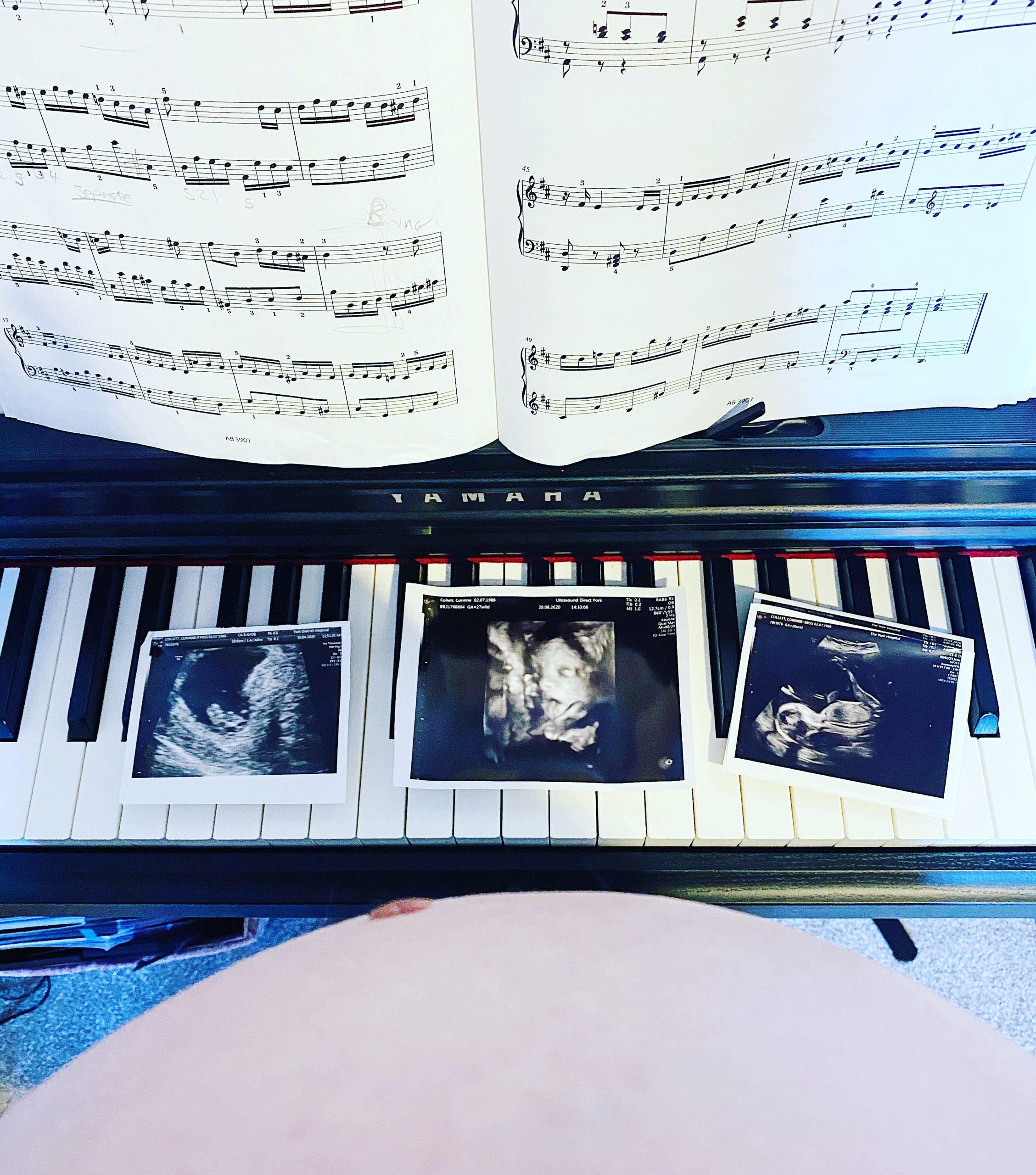 baby bump and piano pregnancy blog